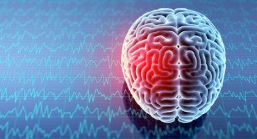 Brain - Saratoga Springs Chiropractic, Saratoga, NY